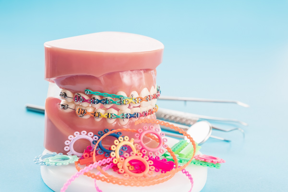 dental braces concept